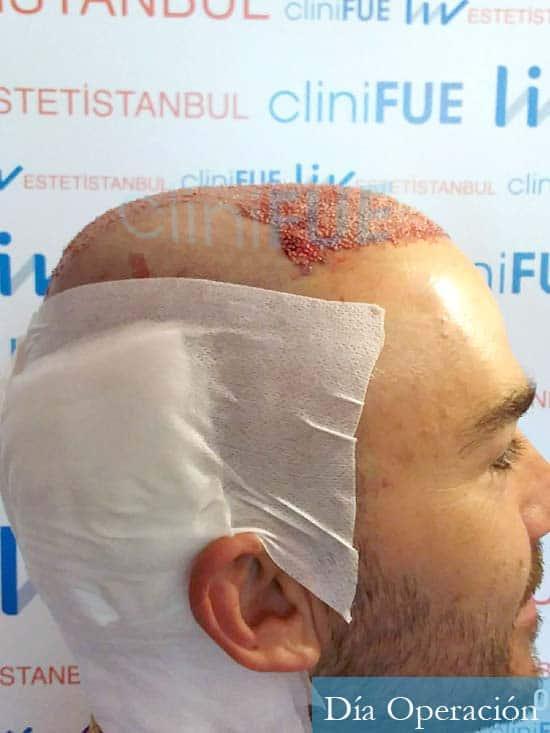 Pedro 32 anos Barcelona injerto de pelo dia operacion 3