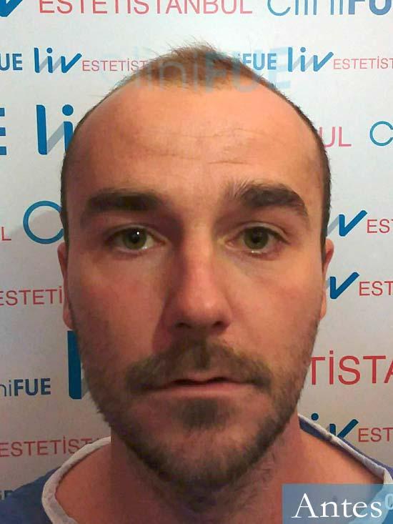 Pedro 32 anos Barcelona injerto de pelo dia operacion Antes