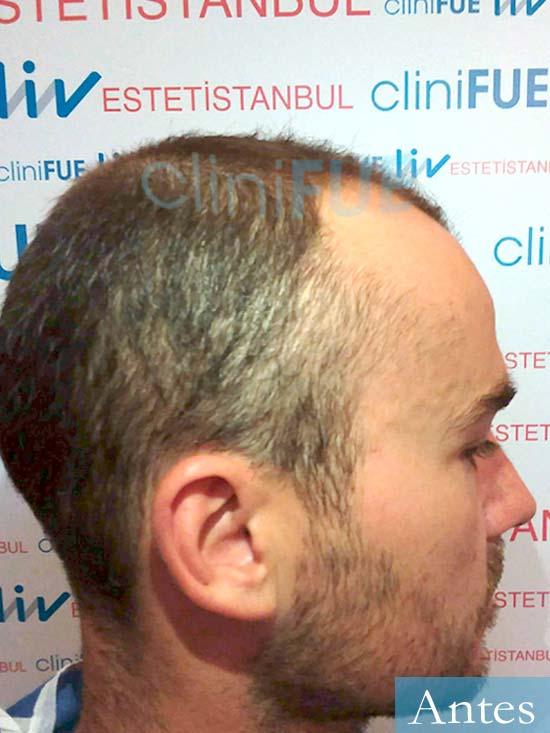 Pedro 32 anos Barcelona injerto de pelo dia operacion Antes 3