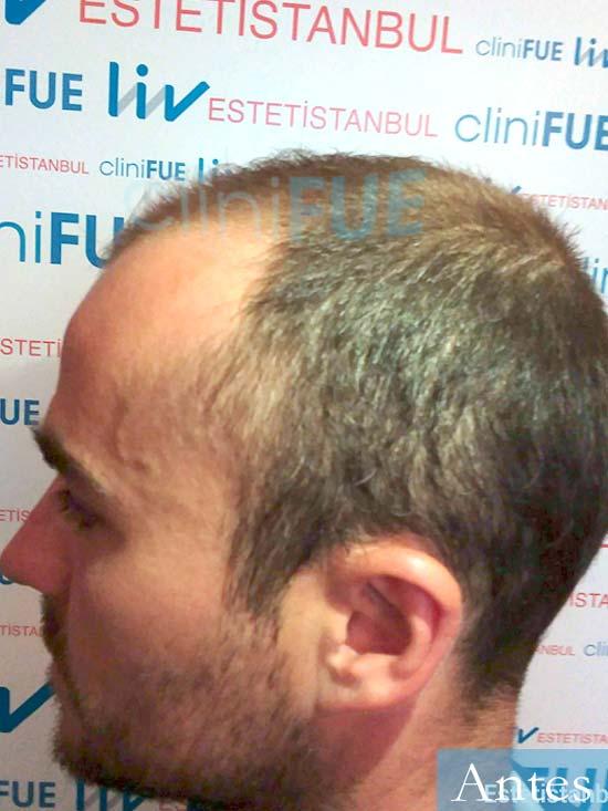 Pedro 32 anos Barcelona injerto de pelo dia operacion Antes 4