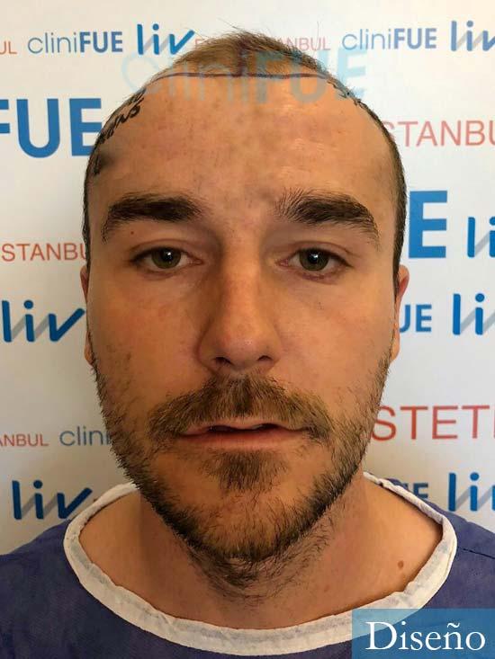 Pedro 32 anos Barcelona injerto de pelo dia operacion diseno 1