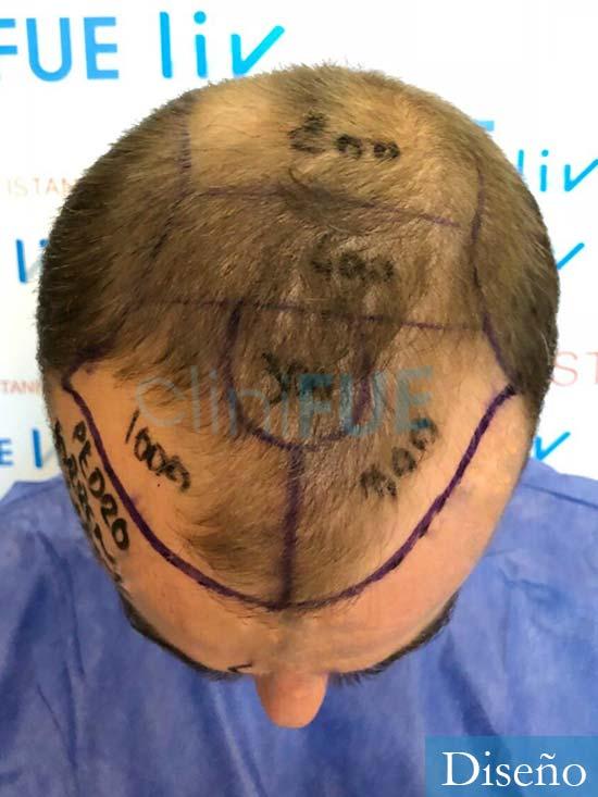 Pedro 32 anos Barcelona injerto de pelo dia operacion diseno 2