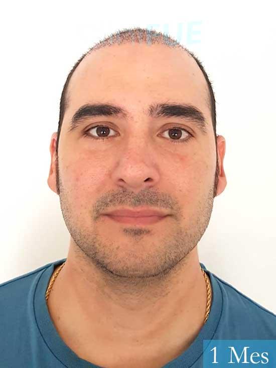 Sergio 36 Cordoba injerto de pelo 1 mes