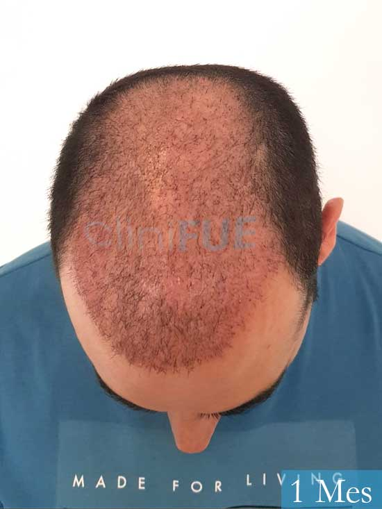 Sergio 36 Cordoba injerto de pelo 1 mes 2