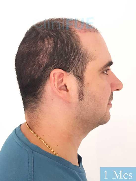 Sergio 36 Cordoba injerto de pelo 1 mes 3