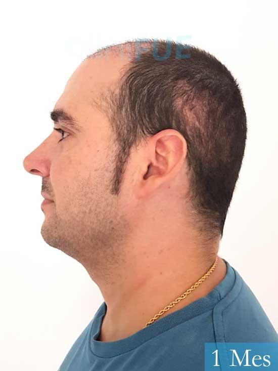 Sergio 36 Cordoba injerto de pelo 1 mes 4