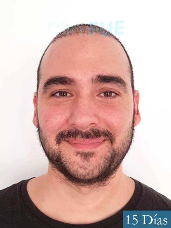 Sergio 36 Cordoba injerto de pelo 15 dias