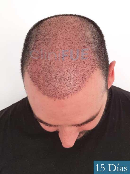 Sergio 36 Cordoba injerto de pelo 15 dias 2