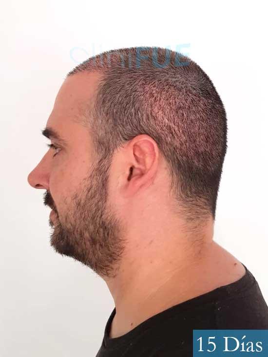 Sergio 36 Cordoba injerto de pelo 15 dias 4