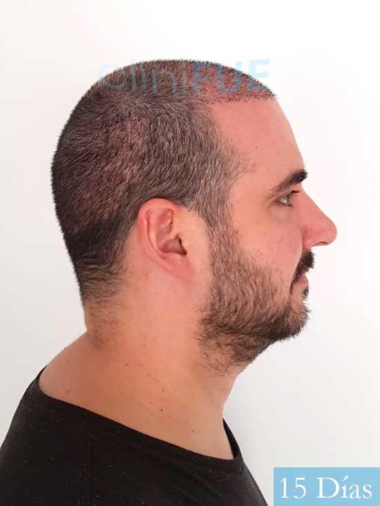 Sergio 36 Cordoba injerto de pelo 15 dias 3