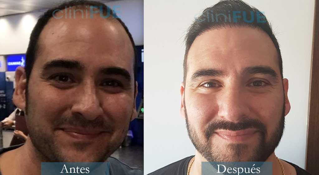 Injerto capilar de Sergio 36 Años de Córdoba con cliniFUE ¡Qué contento está!