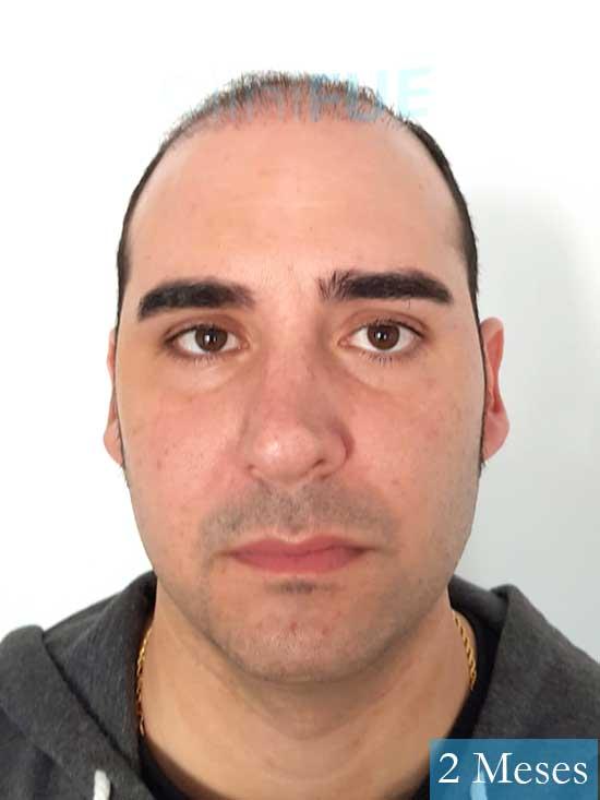 Sergio 36 Cordoba injerto de pelo 2 meses