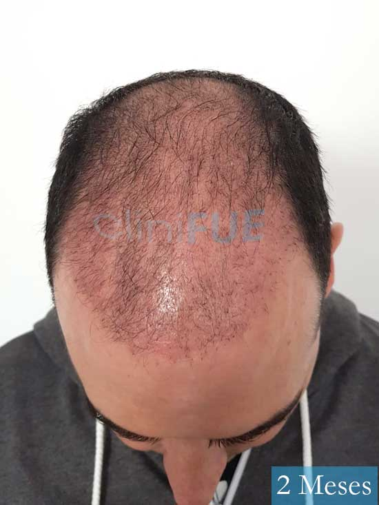 Sergio 36 Cordoba injerto de pelo 2 meses 2