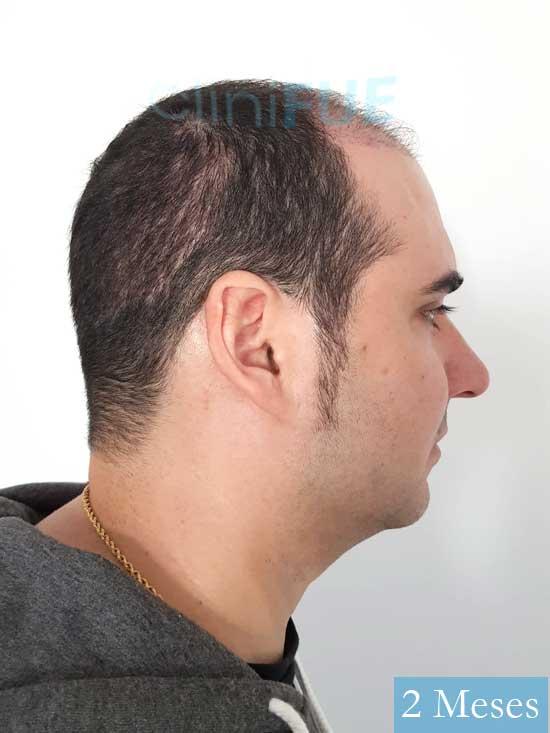 Sergio 36 Cordoba injerto de pelo 2 meses 3