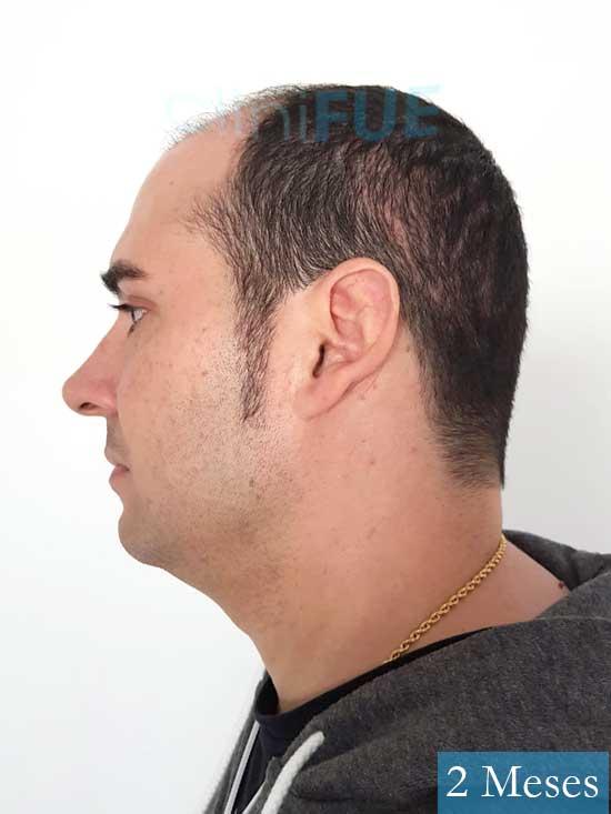 Sergio 36 Cordoba injerto de pelo 2 meses 4