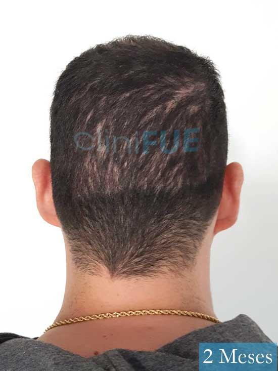 Sergio 36 Cordoba injerto de pelo 2 meses 5