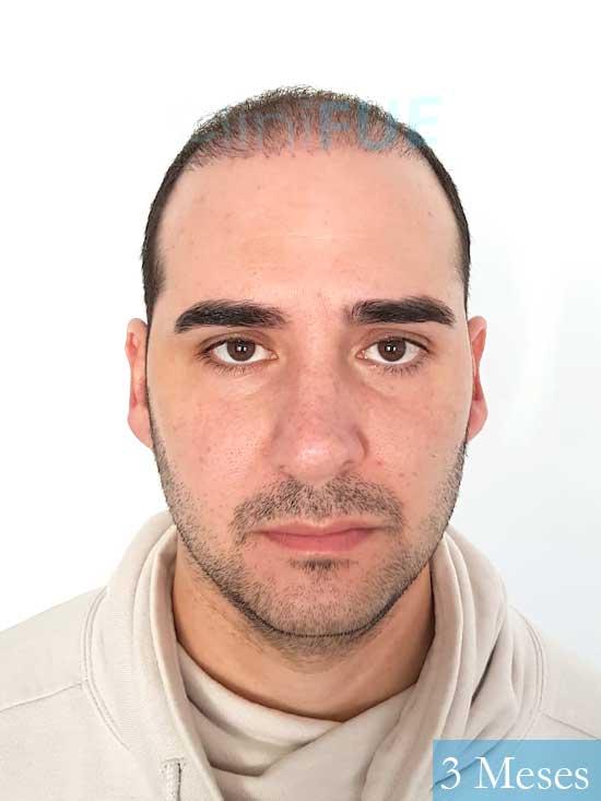Sergio 36 Cordoba injerto de pelo 3 meses