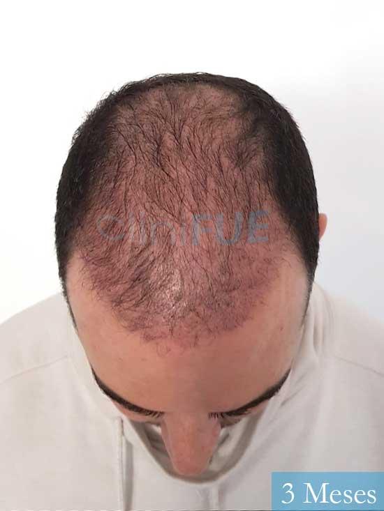 Sergio 36 Cordoba injerto de pelo 3 meses 2