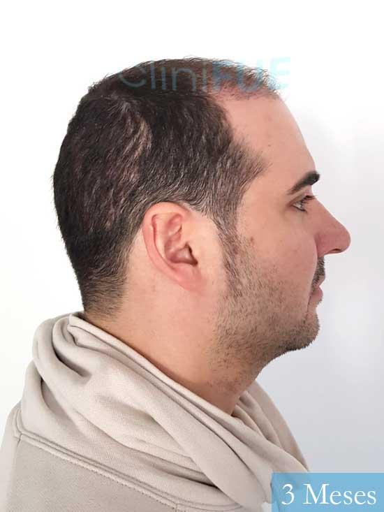 Sergio 36 Cordoba injerto de pelo 3 meses 3