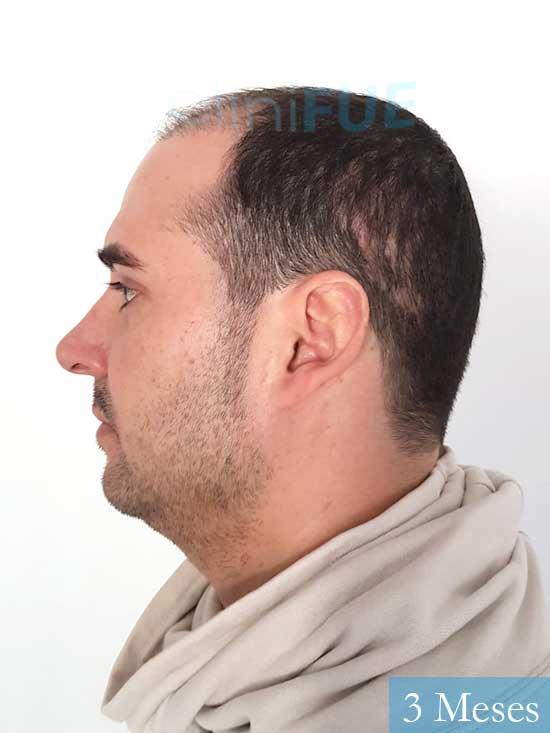 Sergio 36 Cordoba injerto de pelo 3 meses 5