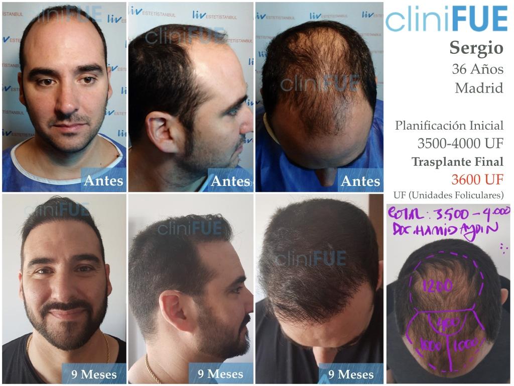 Sergio 36 Cordoba injerto de pelo