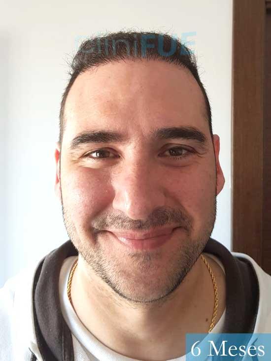 Sergio 36 Cordoba injerto de pelo 6 meses