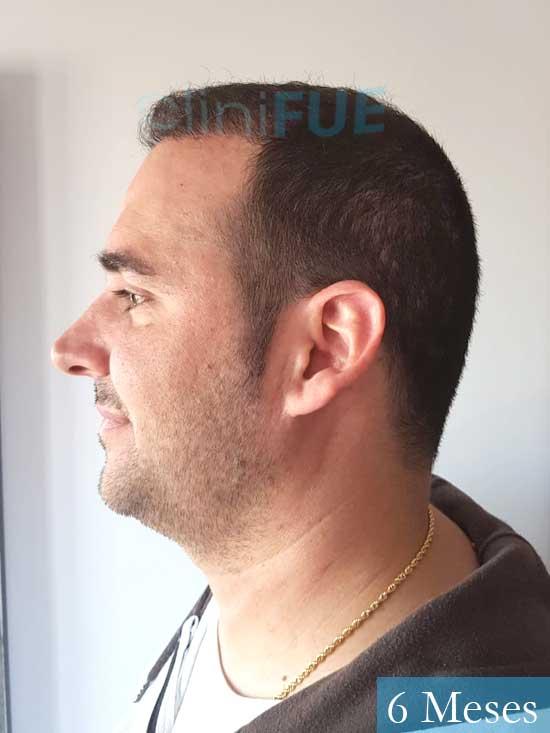 Sergio 36 Cordoba injerto de pelo 6 meses 4