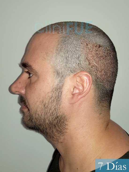 Sergio 36 Cordoba injerto de pelo 7 dias 4