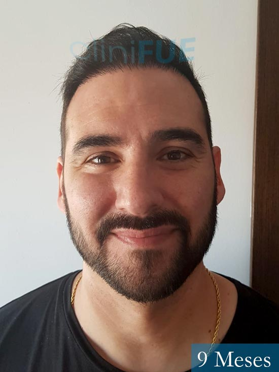 Sergio 36 Cordoba injerto de pelo 9 meses