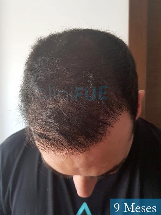 Sergio 36 Cordoba injerto de pelo 9 meses 2