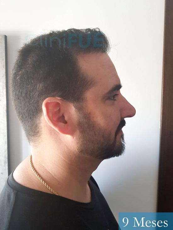 Sergio 36 Cordoba injerto de pelo 9 meses 3
