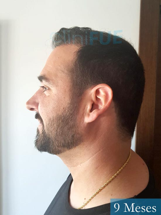 Sergio 36 Cordoba injerto de pelo 9 meses 4