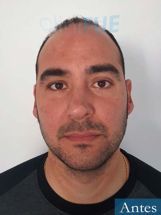 Sergio 36 Cordoba injerto de pelo Antes