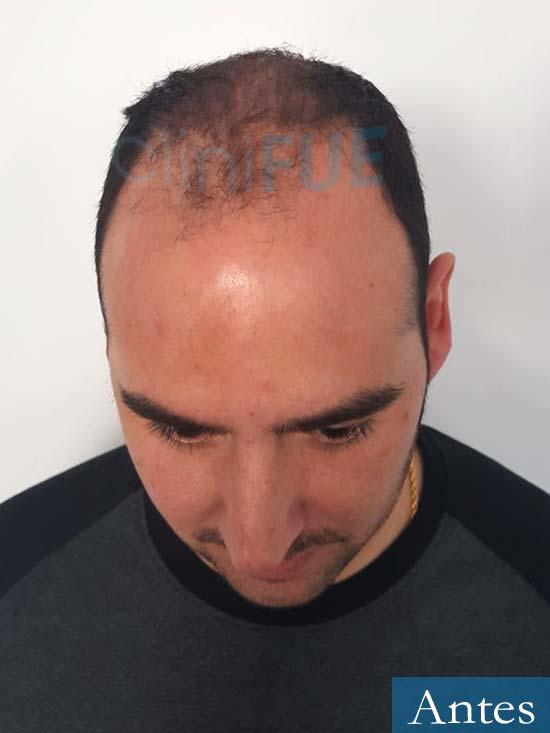 Sergio 36 Cordoba injerto de pelo Antes 2