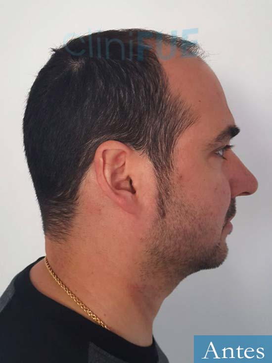 Sergio 36 Cordoba injerto de pelo Antes 3