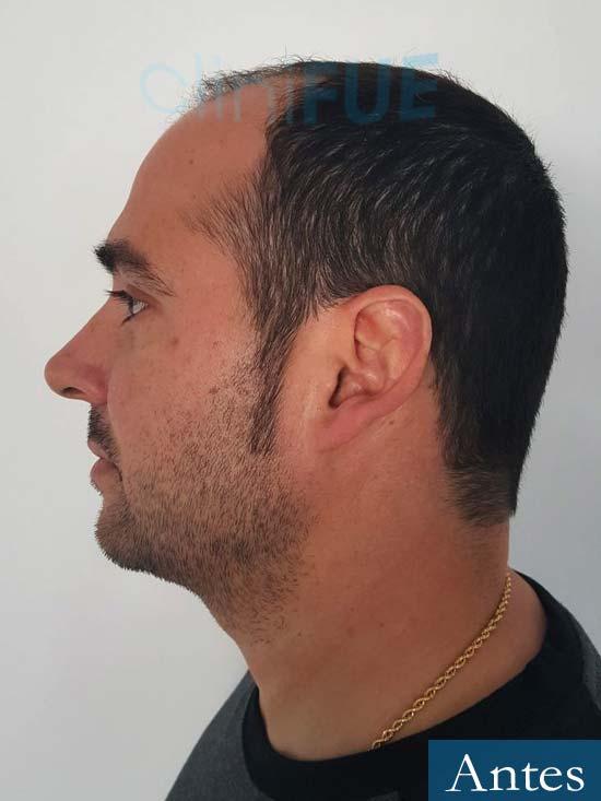 Sergio 36 Cordoba injerto de pelo Antes 4