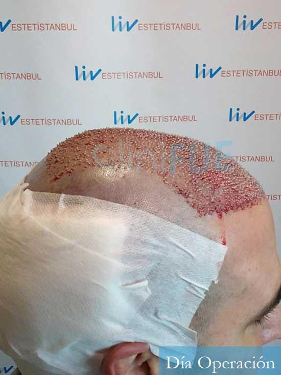 Sergio 36 Cordoba injerto de pelo dia operacion 3