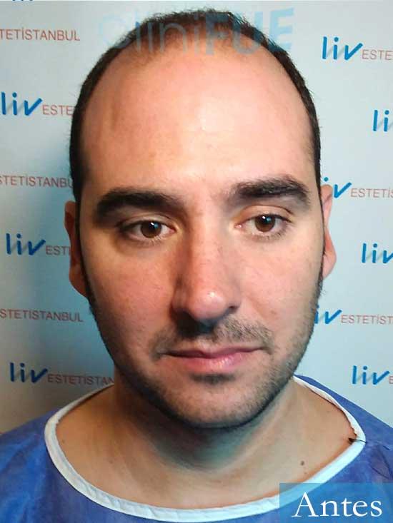 Sergio 36 Cordoba injerto de pelo dia operacion antes
