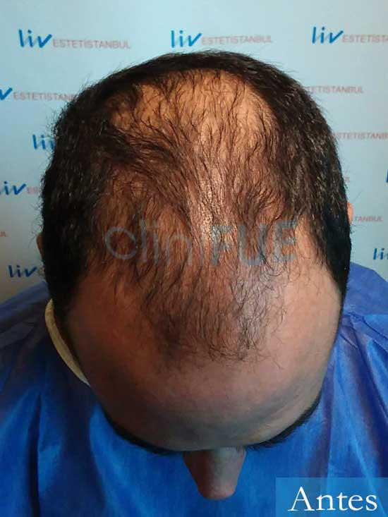 Sergio 36 Cordoba injerto de pelo dia operacion antes 2