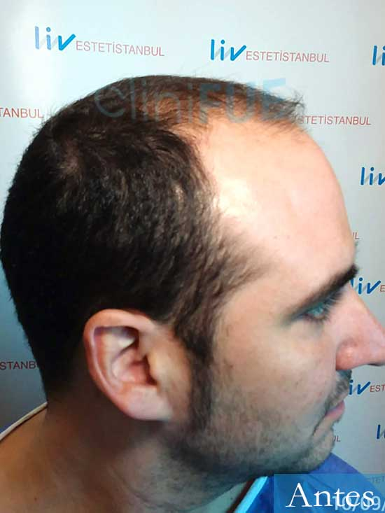 Sergio 36 Cordoba injerto de pelo dia operacion antes 3