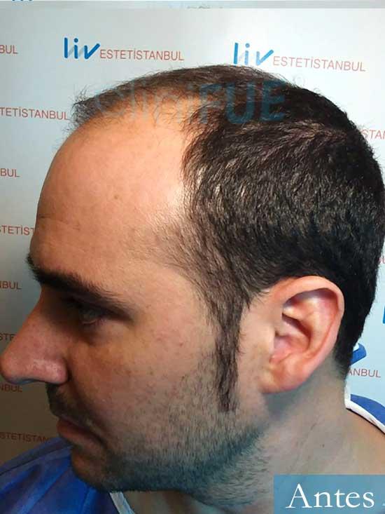 Sergio 36 Cordoba injerto de pelo dia operacion antes 4