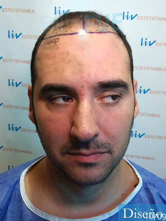 Sergio 36 Cordoba injerto de pelo dia operacion diseno