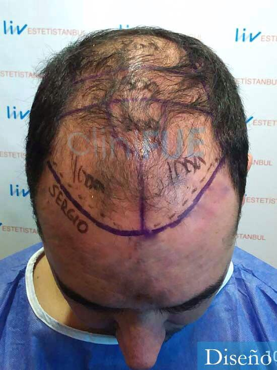 Sergio 36 Cordoba injerto de pelo dia operacion diseno 3