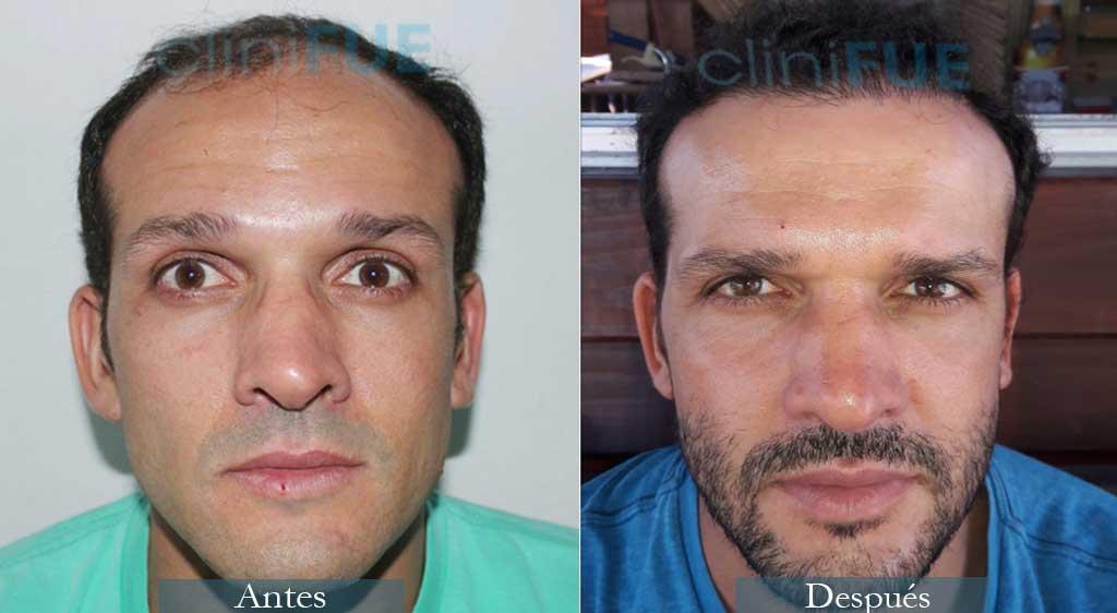 Daniel 38 años Barcelona 3600 UF injerto capilar