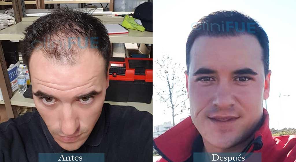 José Carlos 29 años 3400 UF injerto capilar
