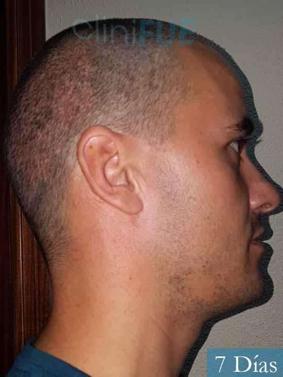 Jose Carlos 29 Cordoba injerto de pelo 7 dias 2