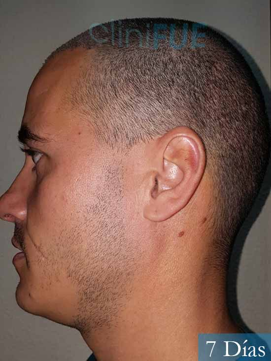 Jose Carlos 29 Cordoba injerto de pelo 7 dias 3