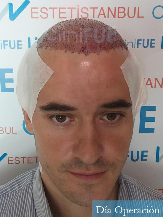 Carlos-29-Cordoba-trasplante-pelo-dia-operacion-