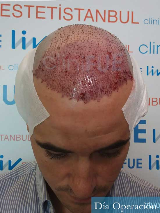 Carlos-29-Cordoba-trasplante-pelo-dia-operacion- 2