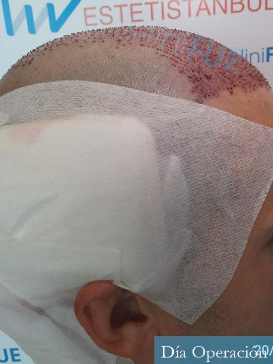 Carlos-29-Cordoba-trasplante-pelo-dia-operacion- 3